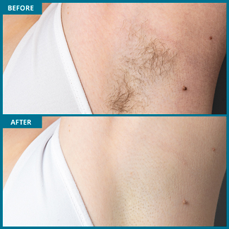 Underarm Before and After