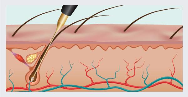 Burning hair root with needle epilation