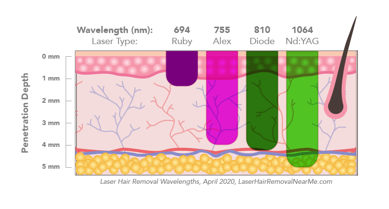 The science behind laser hair removal - chart depicting wavelength penetration by laser type