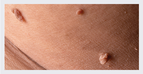 Example of skin tags
